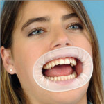 Dental Disposable Sterile Rubber Dam Teeth Whitening Oral Cheek Retractor Mouth Opener 10 Pack